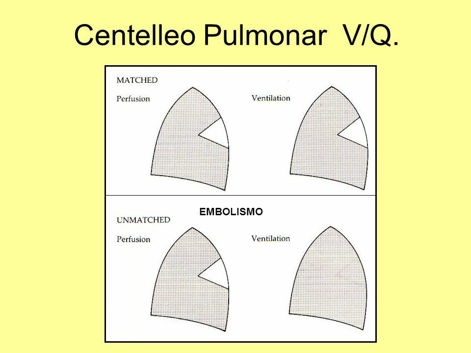 Centelleo Pulmonar V/Q. EMBOLISMO