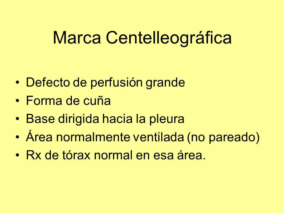 Marca Centelleográfica Defecto de perfusión grande Forma de cuña Base dirigida hacia la pleura Área normalmente ventilada (no pareado) Rx de tórax nor
