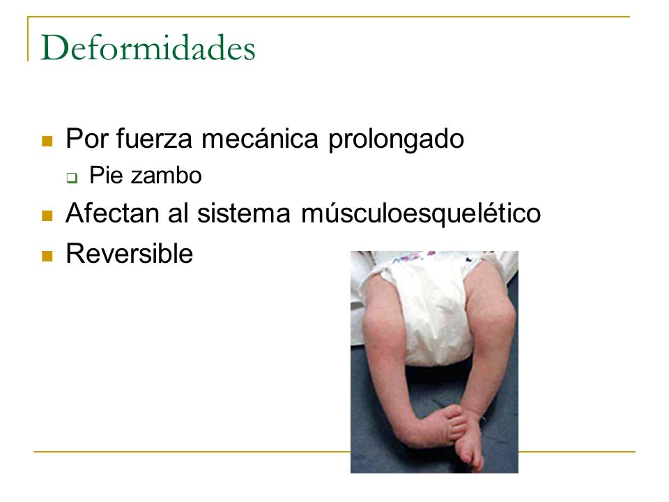 Deformidades Por fuerza mecánica prolongado Pie zambo Afectan al sistema músculoesquelético Reversible