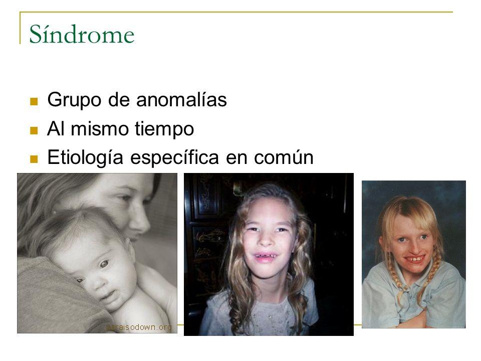 Síndrome Grupo de anomalías Al mismo tiempo Etiología específica en común