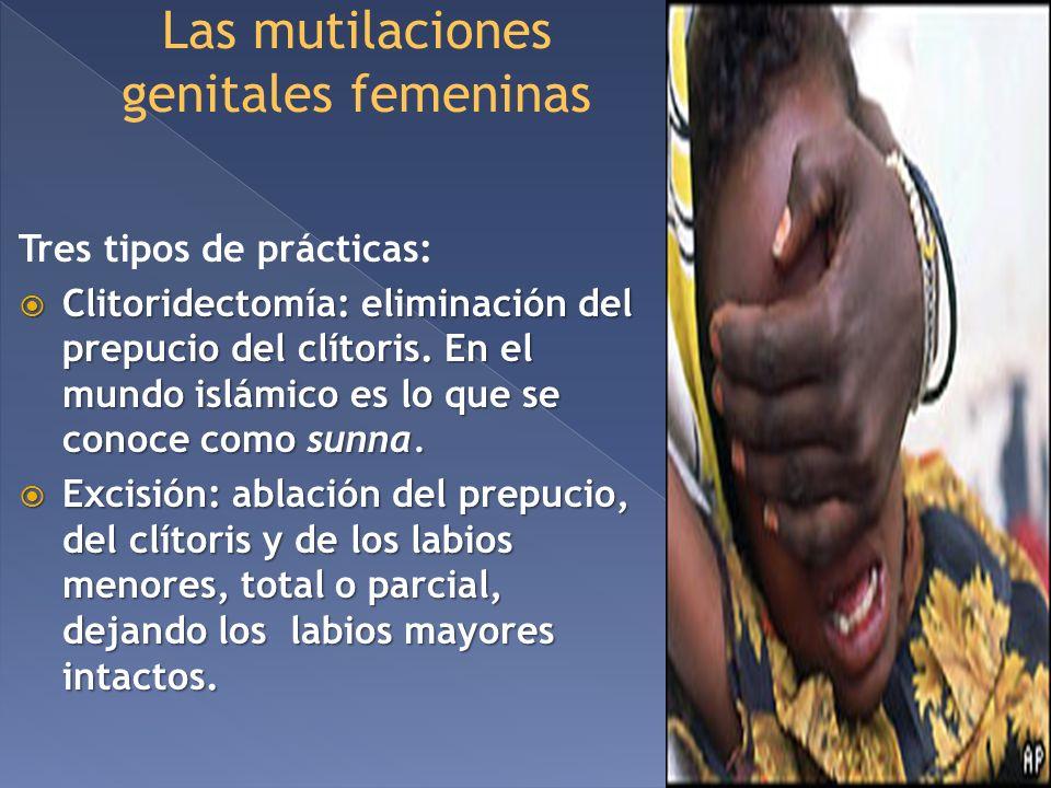 Las mutilaciones genitales femeninas Tres tipos de prácticas: Clitoridectomía: eliminación del prepucio del clítoris. En el mundo islámico es lo que s