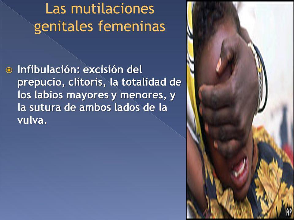 Las mutilaciones genitales femeninas Infibulación: excisión del prepucio, clítoris, la totalidad de los labios mayores y menores, y la sutura de ambos
