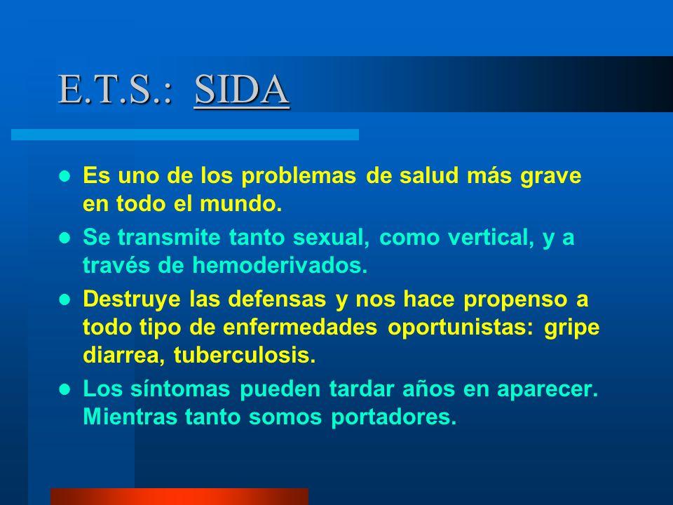 E.T.S.: SIDA Es uno de los problemas de salud más grave en todo el mundo. Se transmite tanto sexual, como vertical, y a través de hemoderivados. Destr