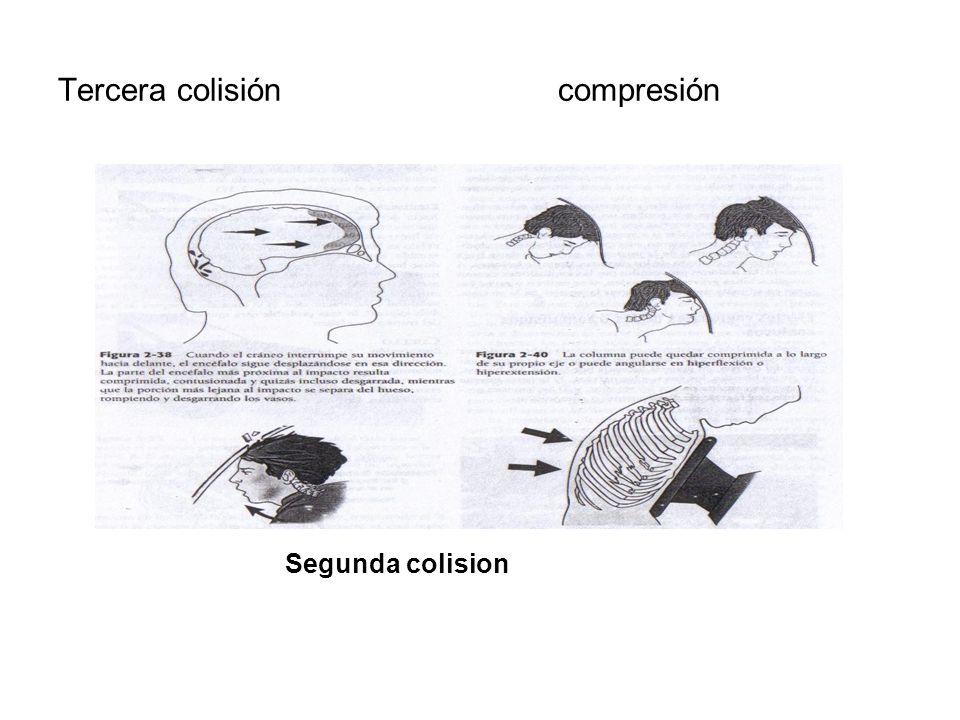 Tercera colisión compresión Segunda colision