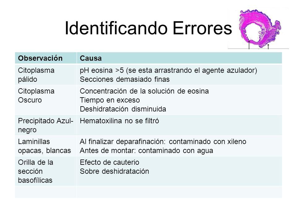 Identificando Errores ObservaciónCausa Citoplasma pálido pH eosina >5 (se esta arrastrando el agente azulador) Secciones demasiado finas Citoplasma Os