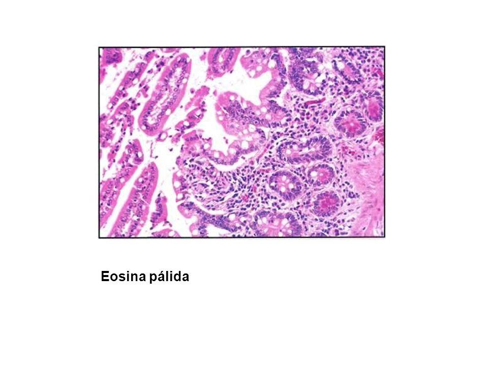 Eosina pálida