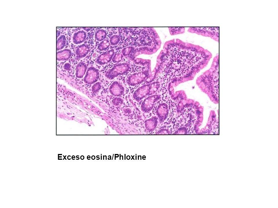Exceso eosina/Phloxine