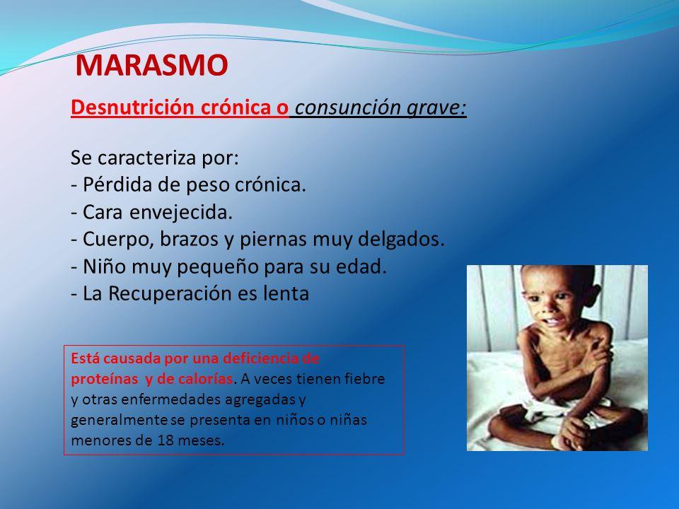 Desnutrición aguda: Está causada por un deficit de proteínas viscerales.