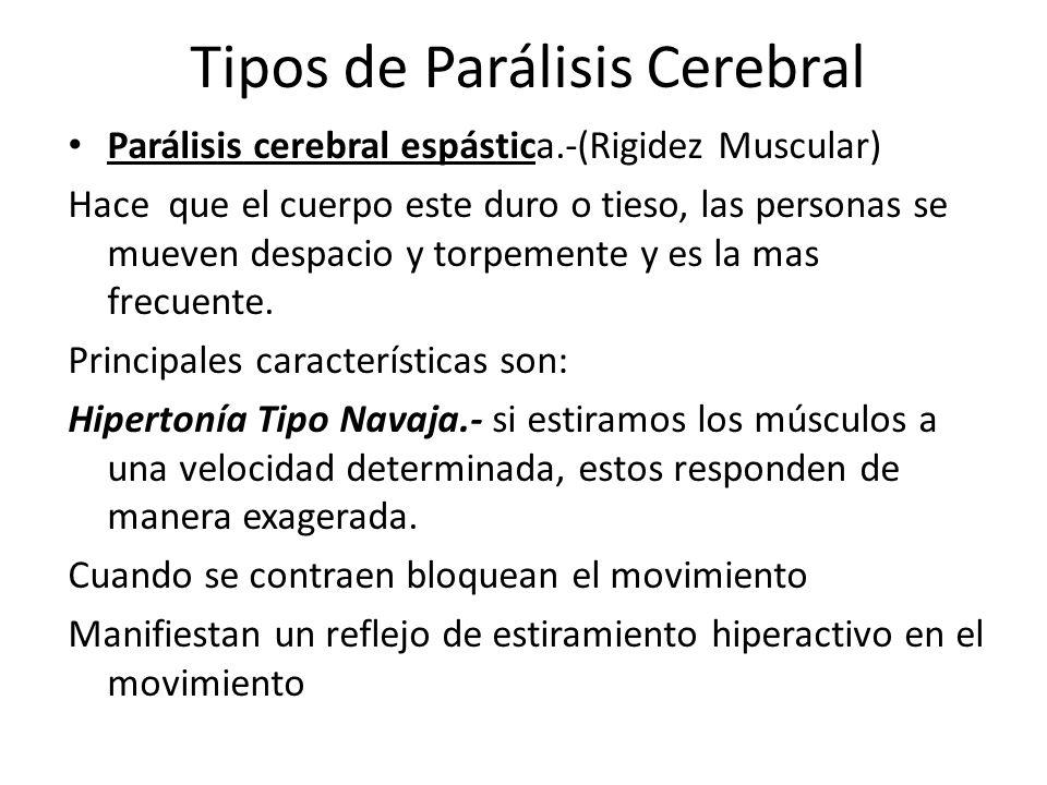 Tipos de Parálisis Cerebral Parálisis cerebral espástica.-(Rigidez Muscular) Hace que el cuerpo este duro o tieso, las personas se mueven despacio y t