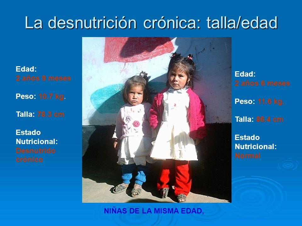 Edad: 2 años 9 meses Peso: 10.7 kg. Talla: 78.3 cm Estado Nutricional: Desnutrido crónico Edad: 2 años 6 meses Peso: 11.6 kg. Talla: 86.4 cm Estado Nu