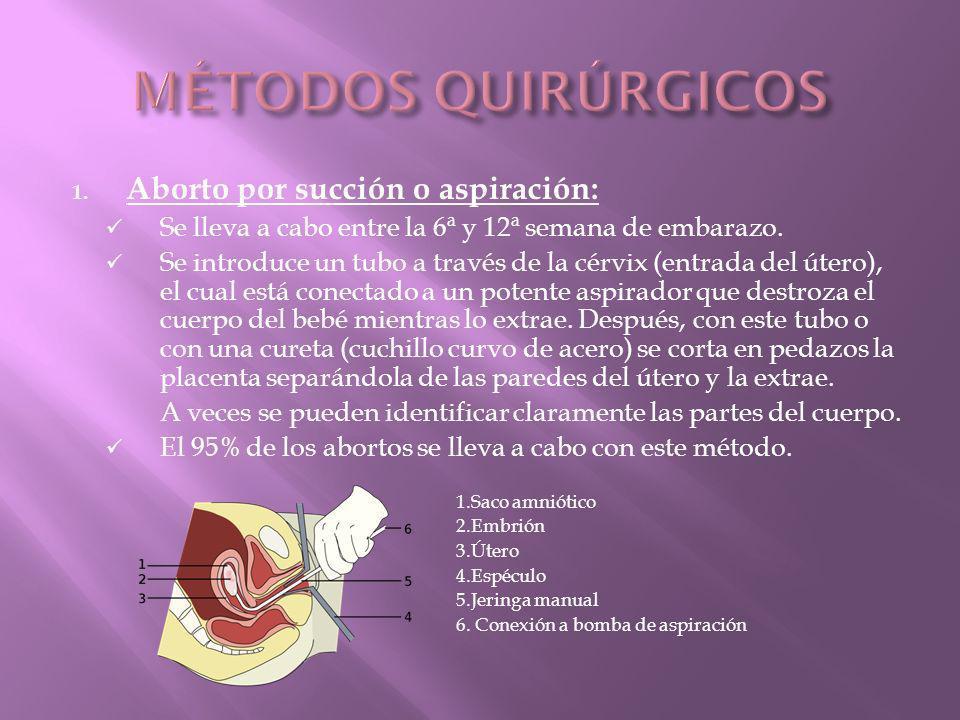 1.Aborto por succión o aspiración: Se lleva a cabo entre la 6ª y 12ª semana de embarazo.