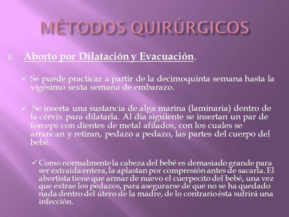 3.Aborto por Dilatación y Evacuación.