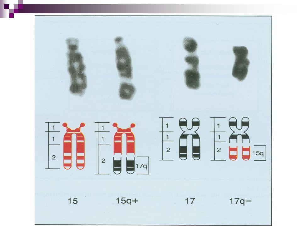 Leucemia mieloblástica El cuadro clínico es menos florido que en la leucemia linfoblástica.