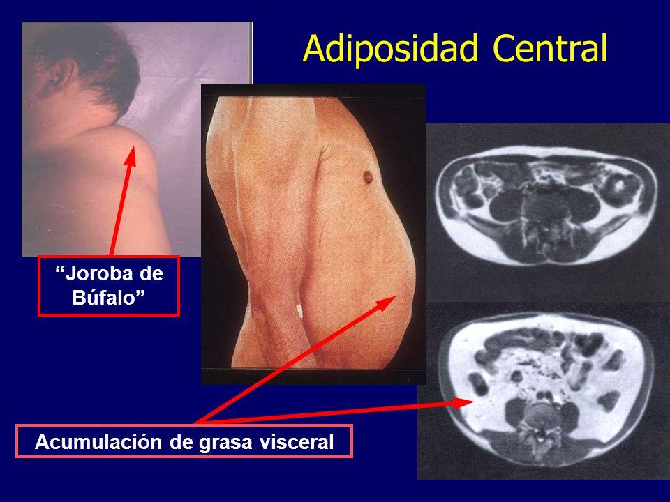 Joroba de Búfalo Adiposidad Central Acumulación de grasa visceral