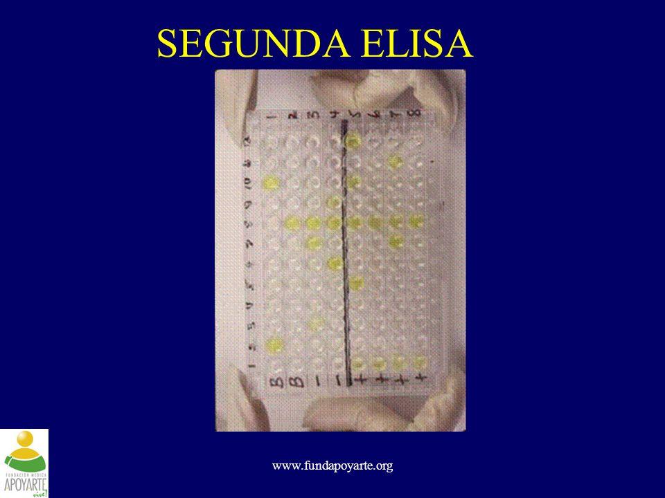 www.fundapoyarte.org SEGUNDA ELISA