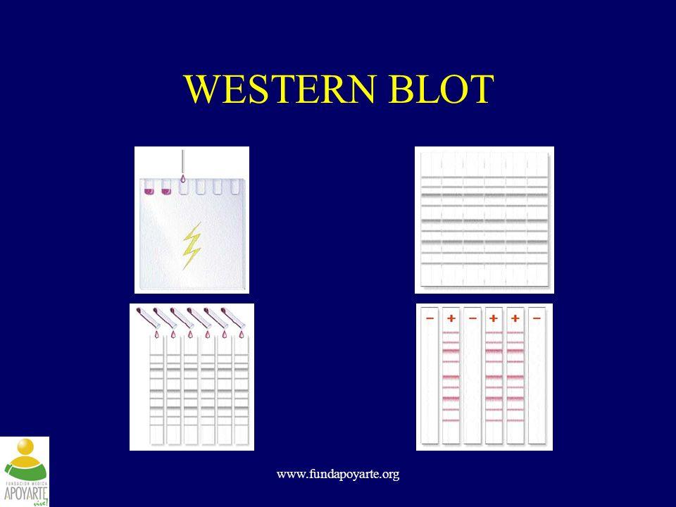 www.fundapoyarte.org WESTERN BLOT