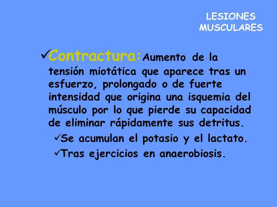 LESIONES MUSCULARES Contractura: Aumento de la tensión miotática que aparece tras un esfuerzo, prolongado o de fuerte intensidad que origina una isque