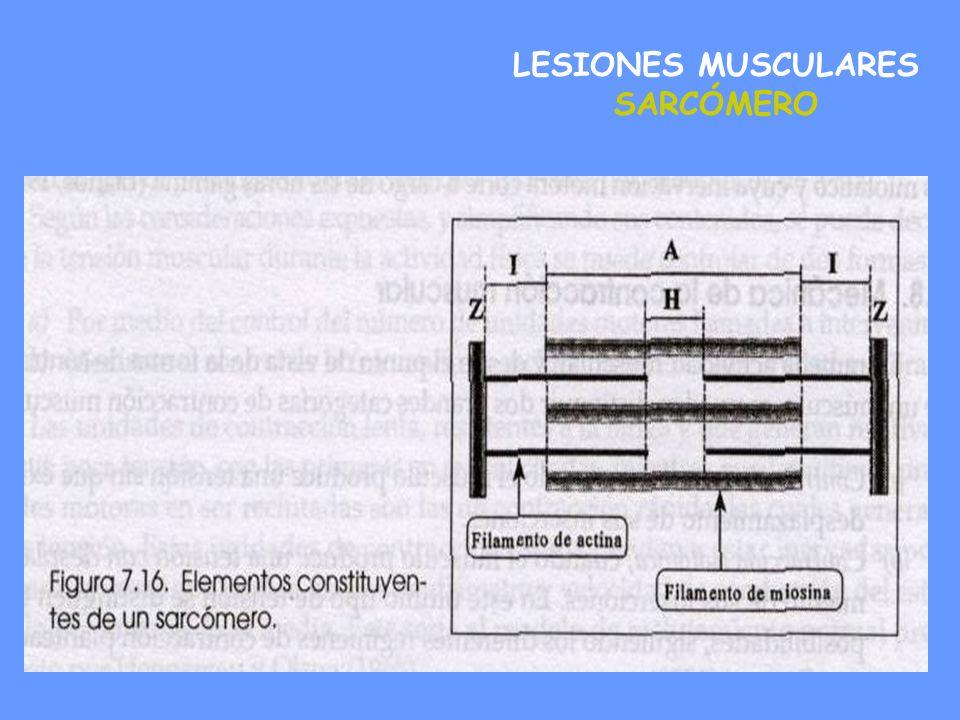 Secuencias de la lesión muscular Lesión miofibrilar.