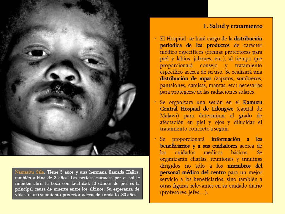 Namasitu Sala. Tiene 5 años y una hermana llamada Hajira, también albina de 3 años. Las heridas causadas por el sol le impiden abrir la boca con facil