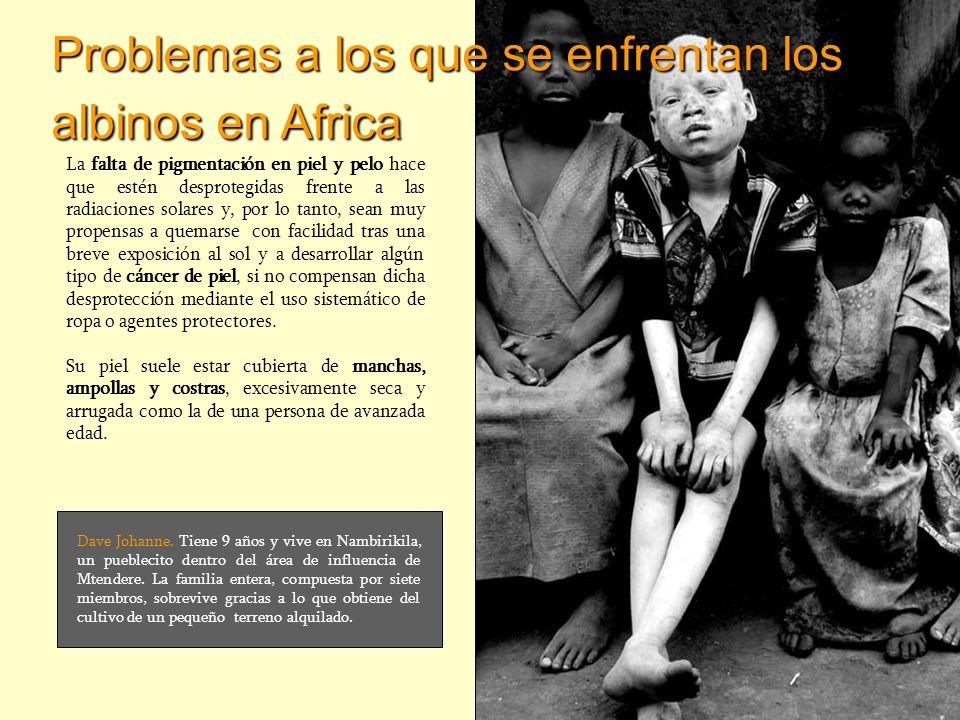Problemas a los que se enfrentan los albinos en Africa La falta de pigmentación en piel y pelo hace que estén desprotegidas frente a las radiaciones s