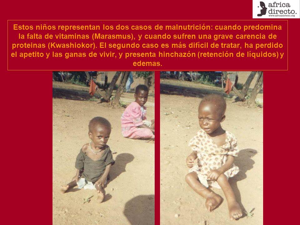 Estos niños representan los dos casos de malnutrición: cuando predomina la falta de vitaminas (Marasmus), y cuando sufren una grave carencia de proteinas (Kwashiokor).