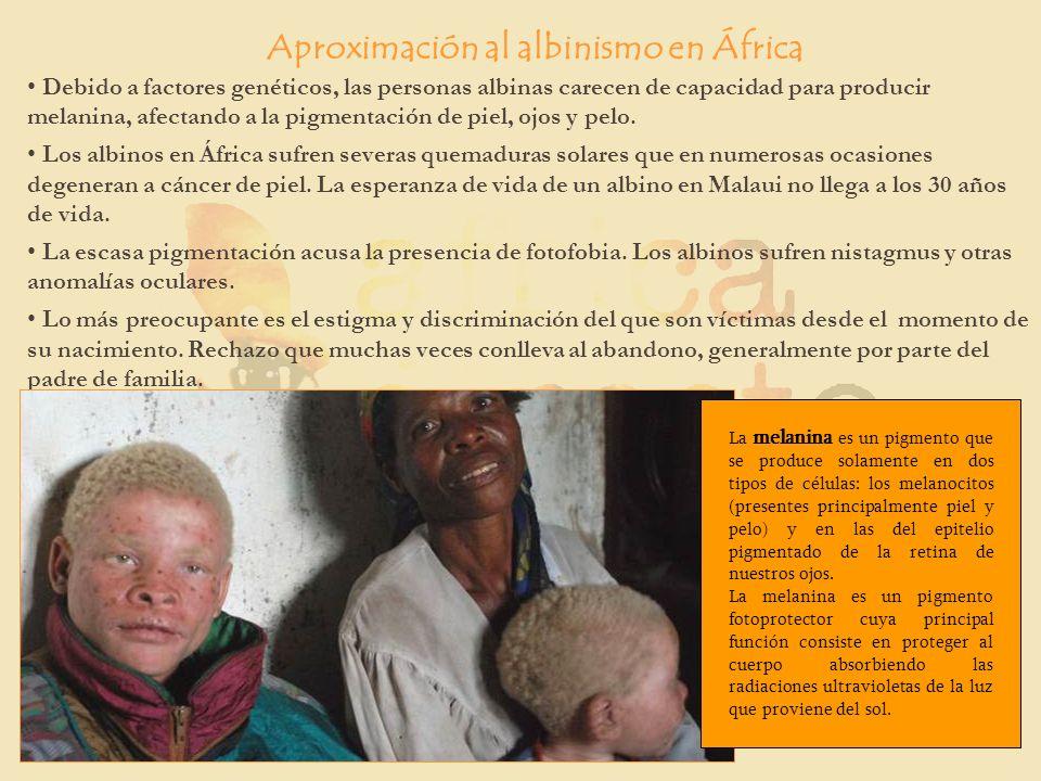 Debido a factores genéticos, las personas albinas carecen de capacidad para producir melanina, afectando a la pigmentación de piel, ojos y pelo. Los a