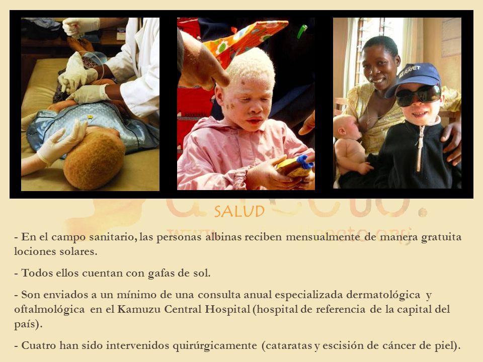 SALUD - En el campo sanitario, las personas albinas reciben mensualmente de manera gratuita lociones solares. - Todos ellos cuentan con gafas de sol.