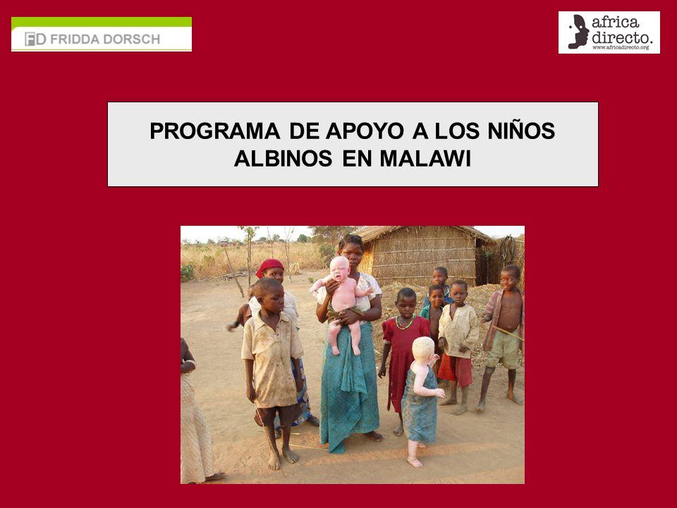 PROGRAMA DE APOYO A LOS NIÑOS ALBINOS EN MALAWI