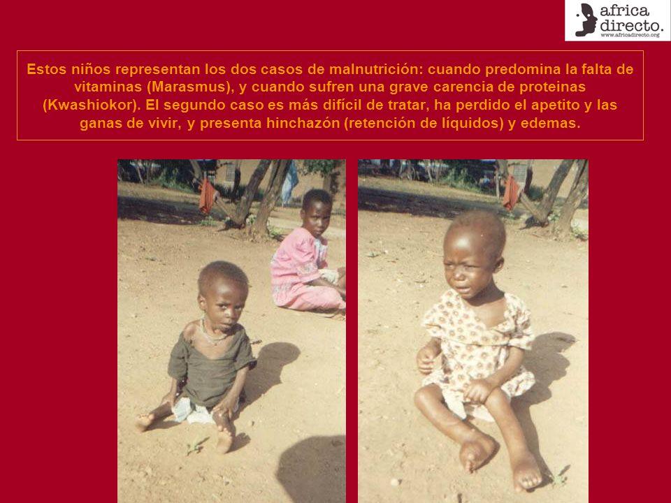 Estos niños representan los dos casos de malnutrición: cuando predomina la falta de vitaminas (Marasmus), y cuando sufren una grave carencia de protei