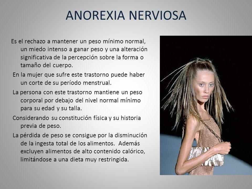 ANOREXIA NERVIOSA Hay otra forma de producir una baja de peso que es mediante la utilización de purgas (vómitos provocados o la utilización de laxantes) además de un ejercicio excesivo.