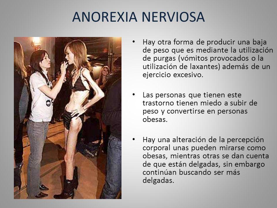 Tipos de Anorexia Tipo Restrictivo.