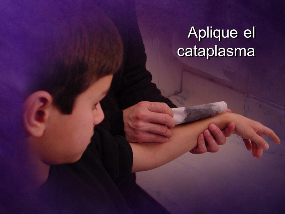 Aplique el cataplasma