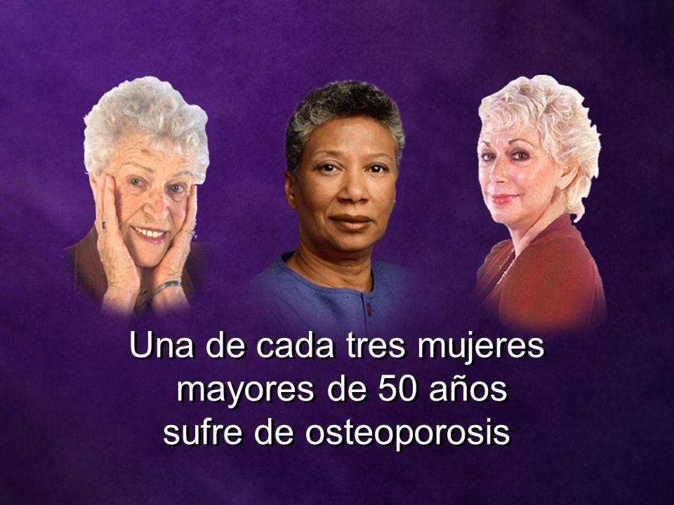 Una de cada tres mujeres mayores de 50 años sufre de osteoporosis Una de cada tres mujeres mayores de 50 años sufre de osteoporosis