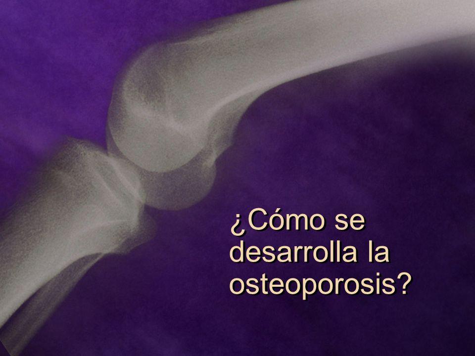 ¿Cómo se desarrolla la osteoporosis?