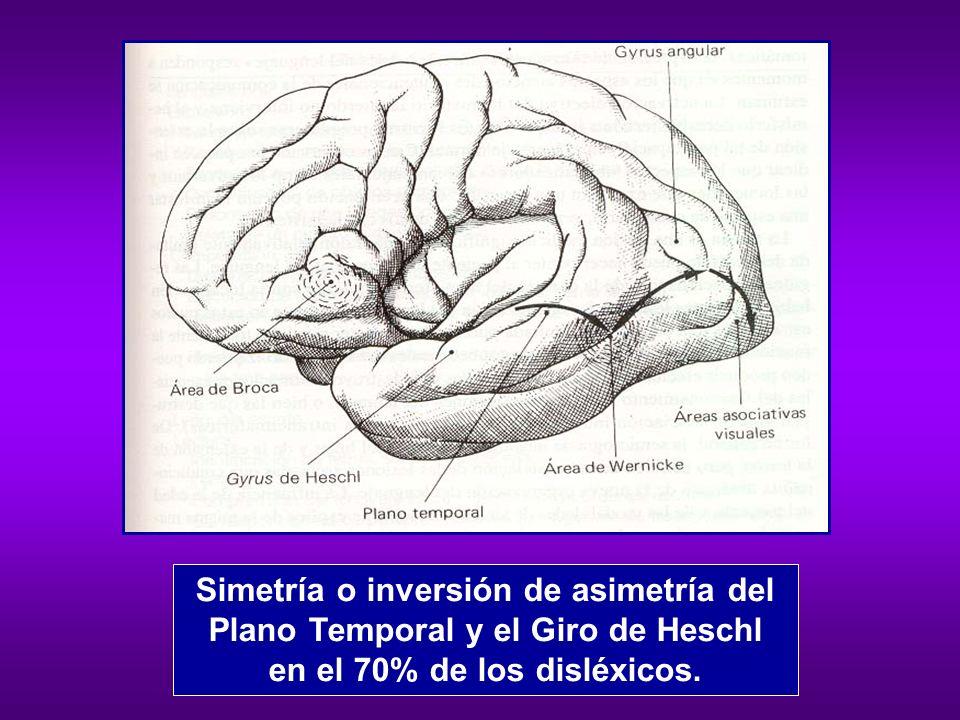 Simetría o inversión de asimetría del Plano Temporal y el Giro de Heschl en el 70% de los disléxicos.