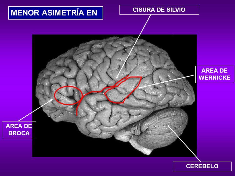 Asimetría invertida en la región parieto-occipital.