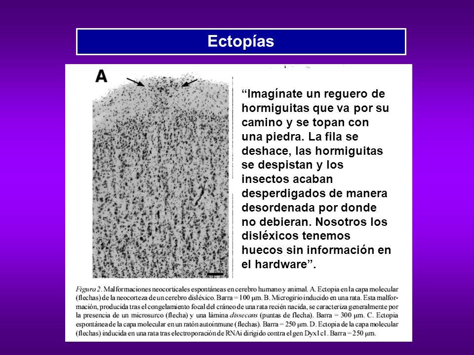 Microfotografías del plano temporal izquierdo, (a) de una persona normal y (b) de una persona con dislexia del desarrollo.