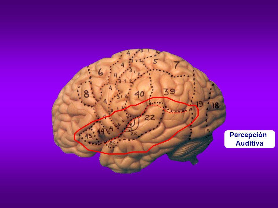 Actividad cerebral en lectura de un lector normal Actividad cerebral en lectura de una persona disléxica