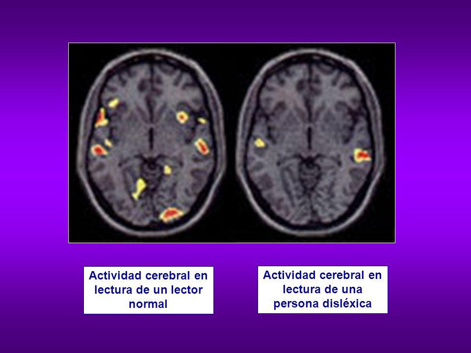 Mayor participación del hemisferio derecho durante la lectura Mayor consumo de energía