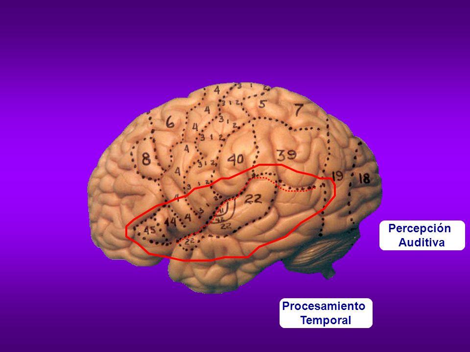 Dificultad para procesar sonidos que cambian a gran velocidad (como los sonidos del lenguaje) Actividad cerebral de un lector normal cuando escucha sonidos que cambian a gran velocidad en comparación con sonidos que cambian lentamente.