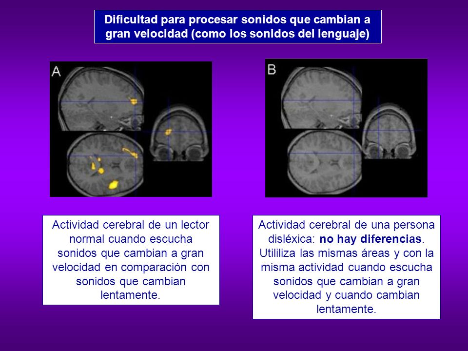 Percepción Auditiva Procesos Visoperceptivos Procesamiento Temporal
