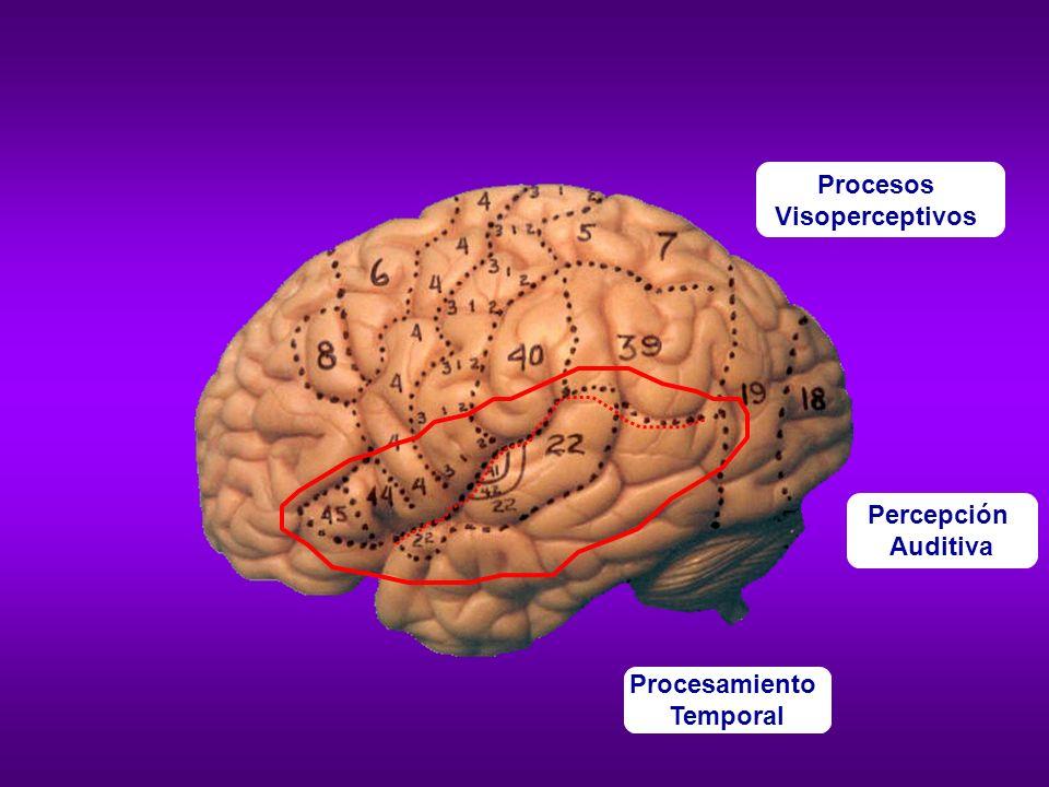Dificultad para procesar estímulos en movimiento (no se activa el área V5/MT).
