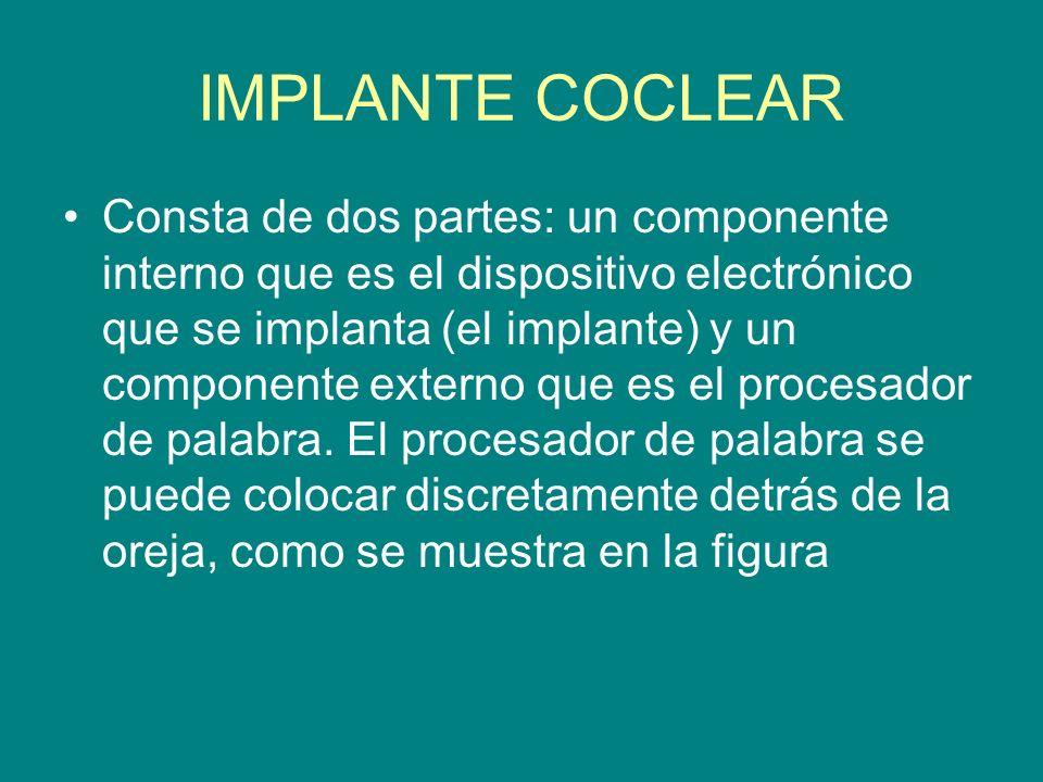 IMPLANTE COCLEAR Consta de dos partes: un componente interno que es el dispositivo electrónico que se implanta (el implante) y un componente externo q
