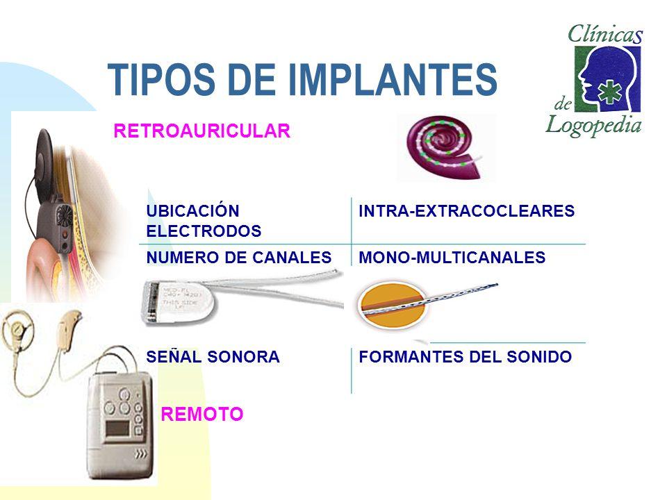 TIPOS DE IMPLANTES UBICACIÓN ELECTRODOS INTRA-EXTRACOCLEARES NUMERO DE CANALESMONO-MULTICANALES SEÑAL SONORAFORMANTES DEL SONIDO RETROAURICULAR REMOTO
