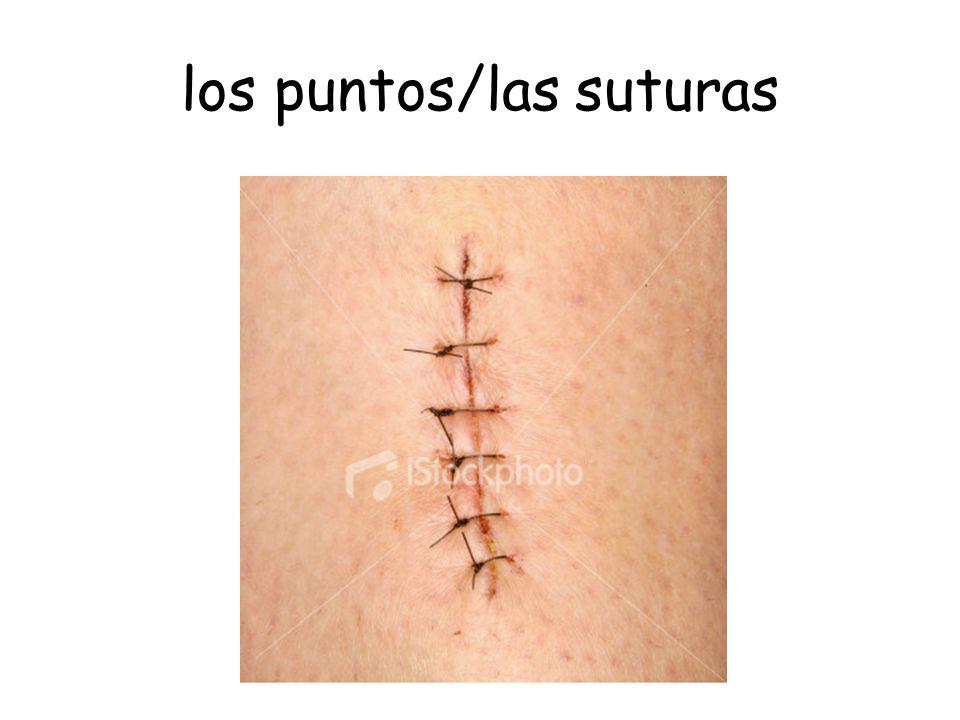 los puntos/las suturas
