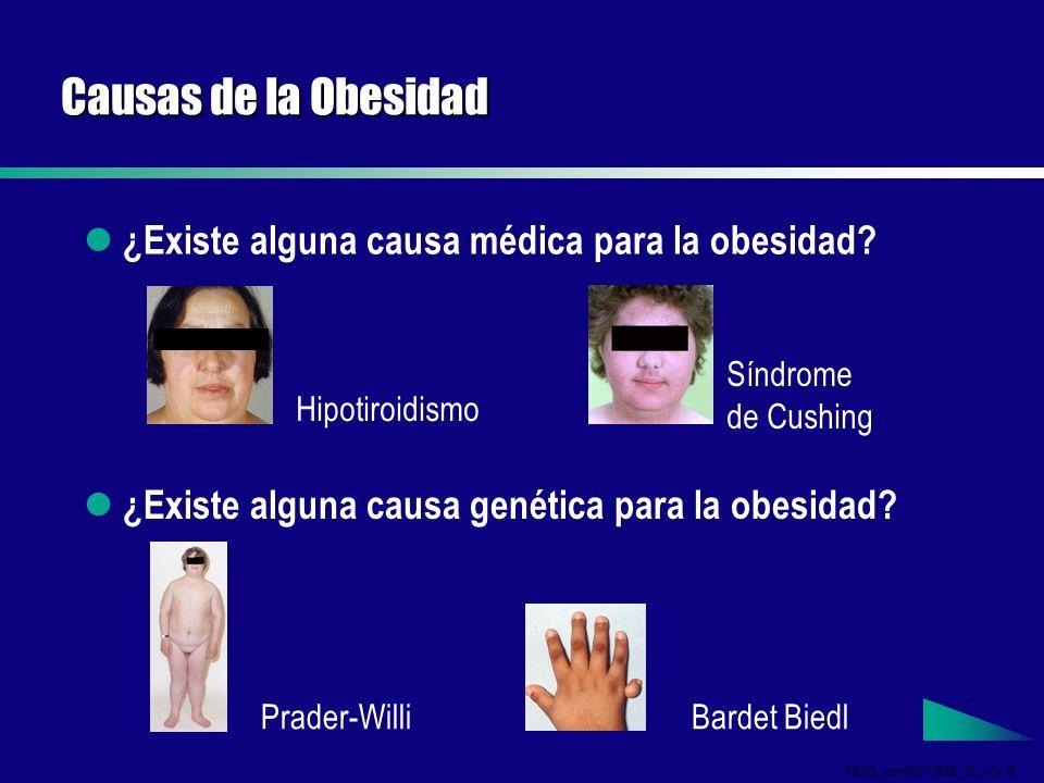 GDS_em0311846_D_v5 9 Causas de la Obesidad ¿Existe alguna causa médica para la obesidad.