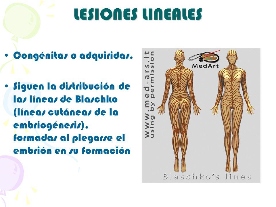 LESIONES LINEALES Congénitas o adquiridas. Siguen la distribución de las líneas de Blaschko (líneas cutáneas de la embriogénesis), formadas al plegars
