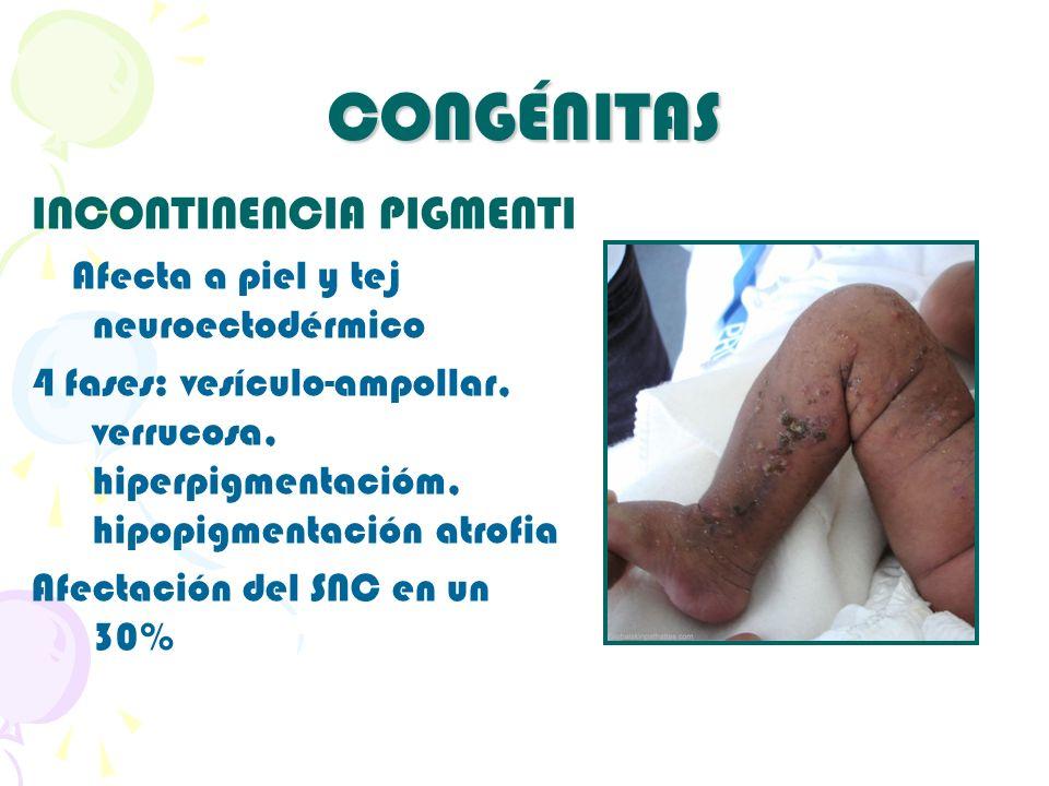 CONGÉNITAS INCONTINENCIA PIGMENTI Afecta a piel y tej neuroectodérmico 4 fases: vesículo-ampollar, verrucosa, hiperpigmentacióm, hipopigmentación atro