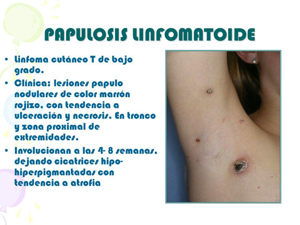 PAPULOSIS LINFOMATOIDE Linfoma cutáneo T de bajo grado. Clínica: lesiones papulo nodulares de color marrón rojizo, con tendencia a ulceración y necros