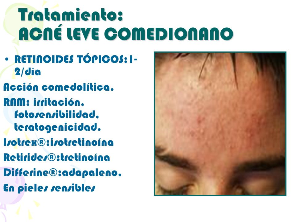 Tratamiento: ACNÉ LEVE COMEDIONANO RETINOIDES TÓPICOS:1- 2/día Acción comedolítica. RAM: irritación, fotosensibilidad, teratogenicidad. Isotrex®:isotr
